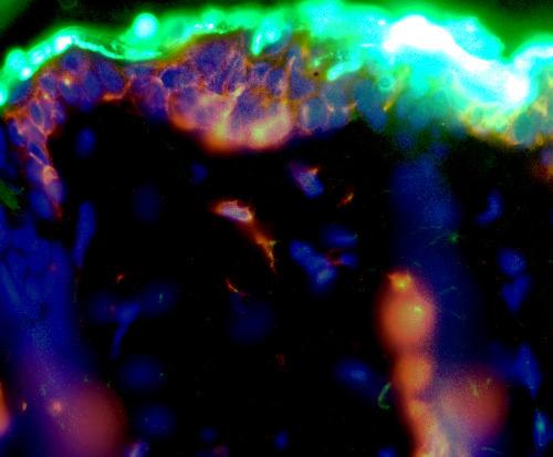 An epicutaneous immunotherapy technique, Viaskin targets the body's Langerhans cells